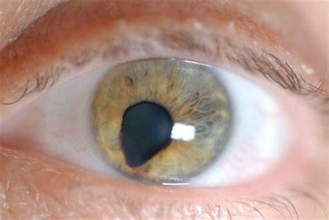 Medical Pictures Info – Coloboma