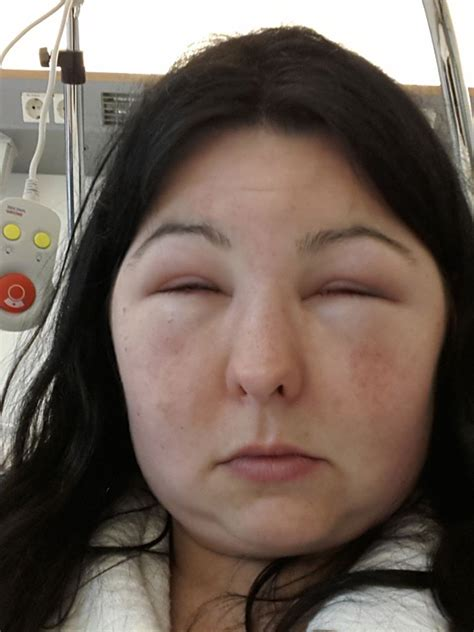 Severe facial swelling in a pregnant woman after using